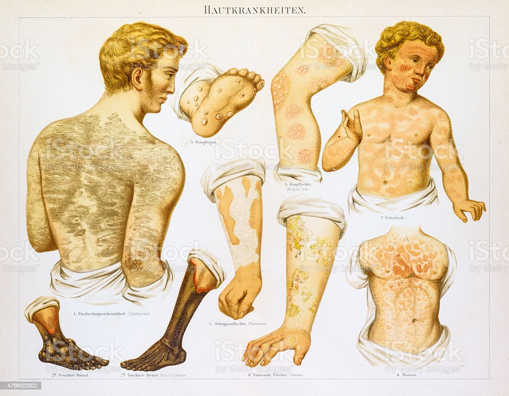 Skin diseases lithography 1895 vector art illustration