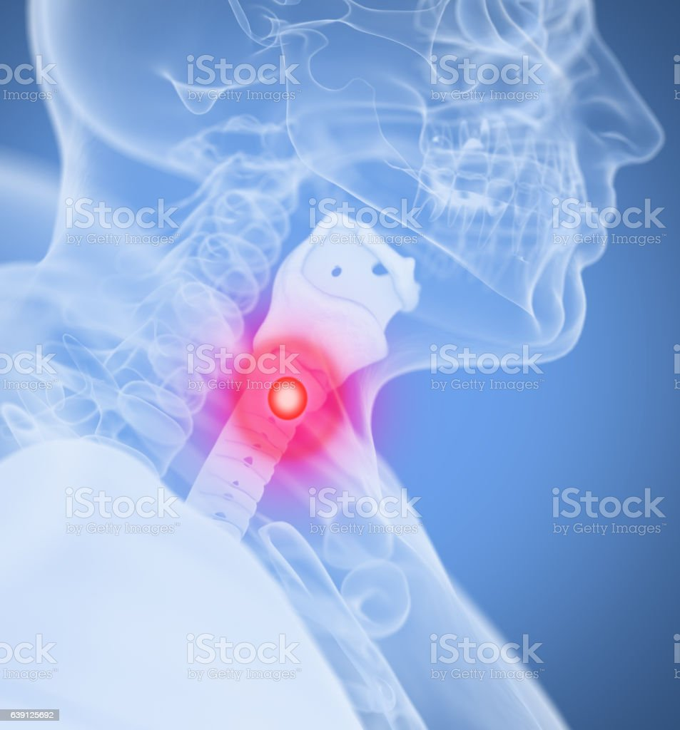 Sore throat, pain. Human anatomy head xray like image. vector art illustration