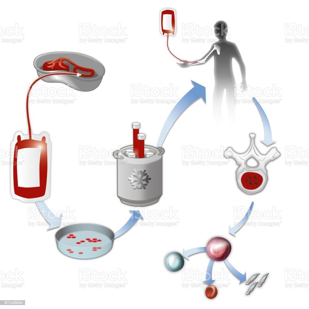 Stem Cell transfusion – Vektorgrafik