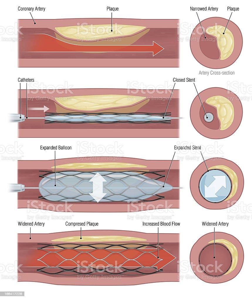 stent vector art illustration