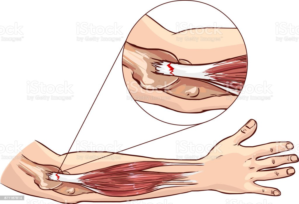 Tennis elbow - tear in the common extensor tendon of the arm vector art illustration