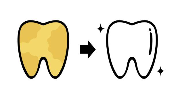 bildbanksillustrationer, clip art samt tecknat material och ikoner med tandhygienist - tandsten