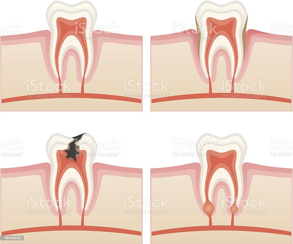 Toothache royalty-free stock vector art