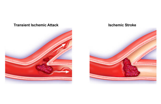 transient ischemic attack - getty stock illustrations
