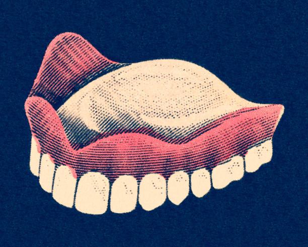 Upper Dentures vector art illustration