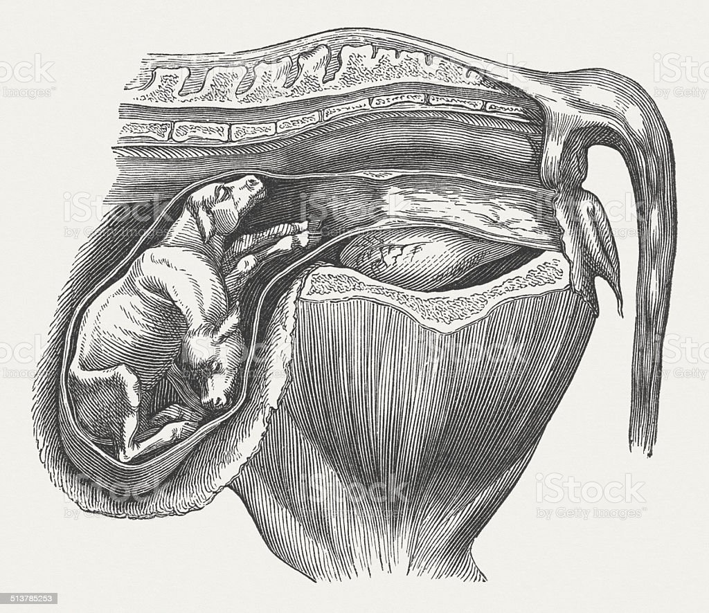 Uterus of a cow, fetus with two-headed, published 1883 vector art illustration