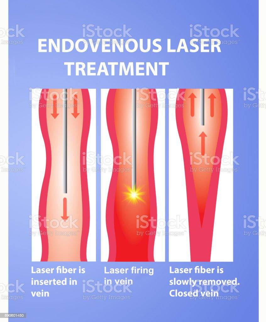 Varicose Veins and laser vector art illustration