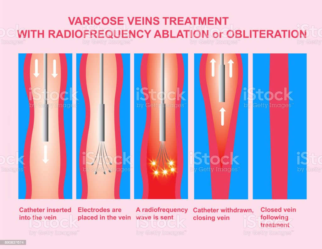 Varicose Veins and Treatment with radiofrequency ablation vector art illustration