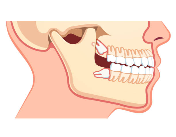 Wisdom third molar tooth problem. Impacted upper and lower wisdom tooth pushing adjacent teeth. Dentist visual aid. Flat isolated vector Human jaws model with teeth row. Impacted upper and lower wisdom tooth pushing adjacent teeth. Wisdom third molar tooth problem. Dentistry and dental surgery concept. Flat vector illustration on white human jaw bone stock illustrations