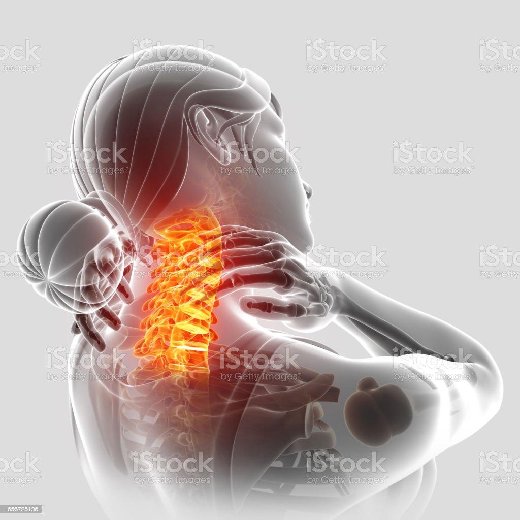 Women Feeling the Neck Pain vector art illustration