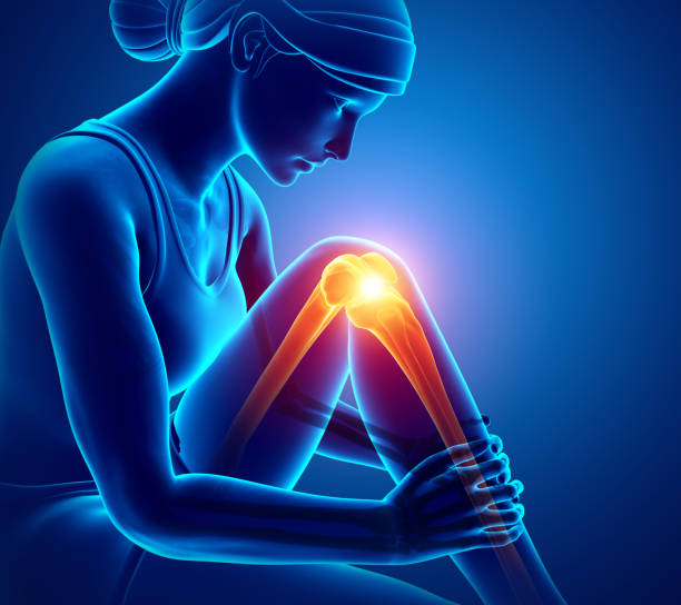 ilustrações, clipart, desenhos animados e ícones de dor nas articulações de joelho de mulheres - ortopedia