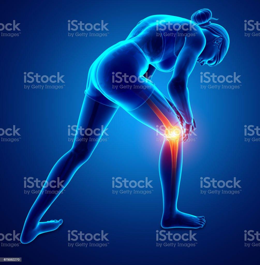 Rheuma-Fakten: Zu viel Sport verursacht Arthritis