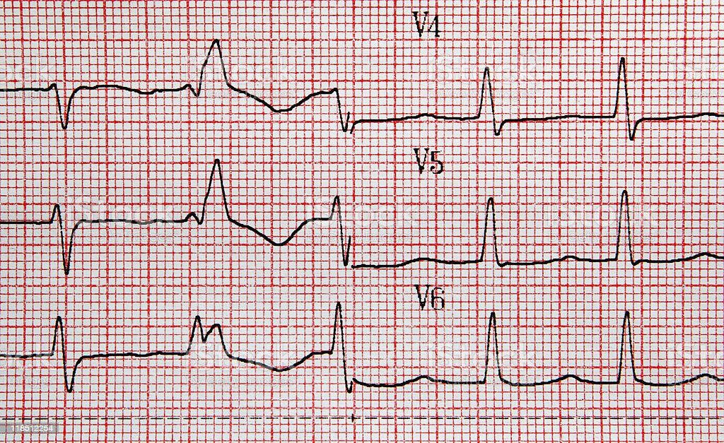 EKG royalty-free stock photo