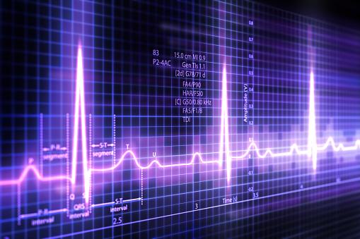 3d Electrocardiogram