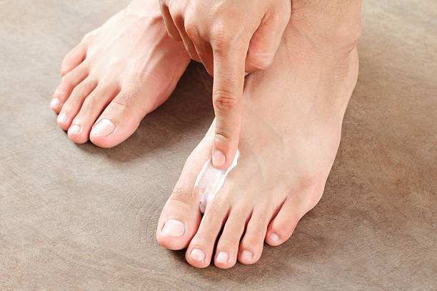 ATHLETE'S FOOT TREATMENT stock photo