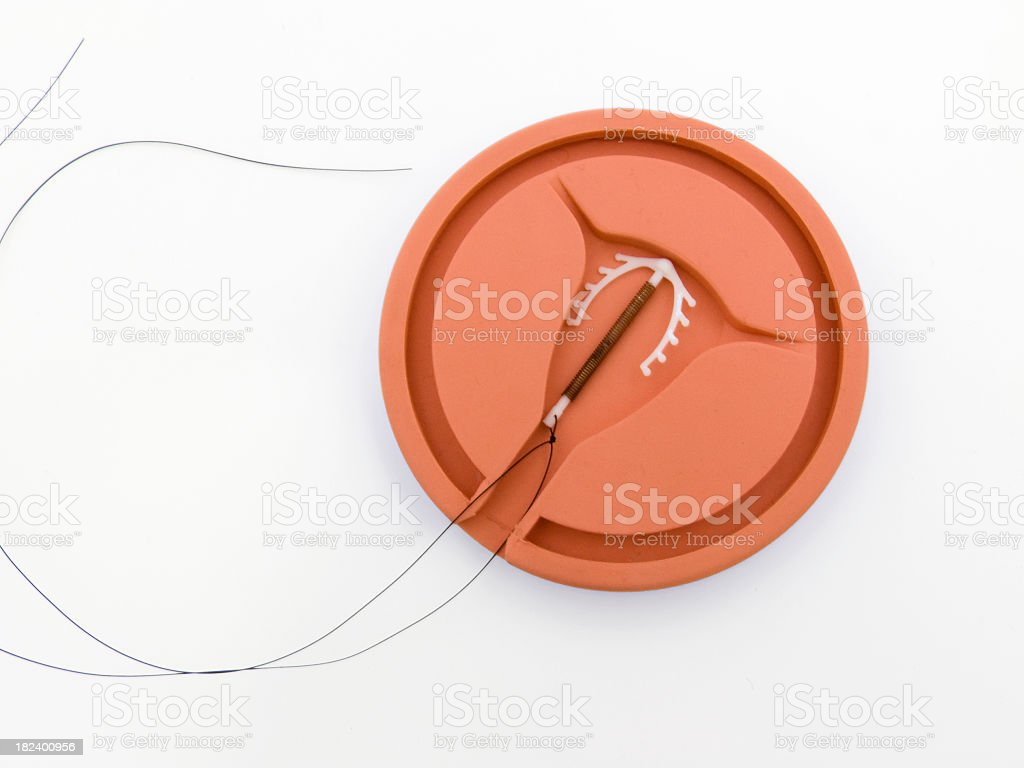 IUD royalty-free stock photo