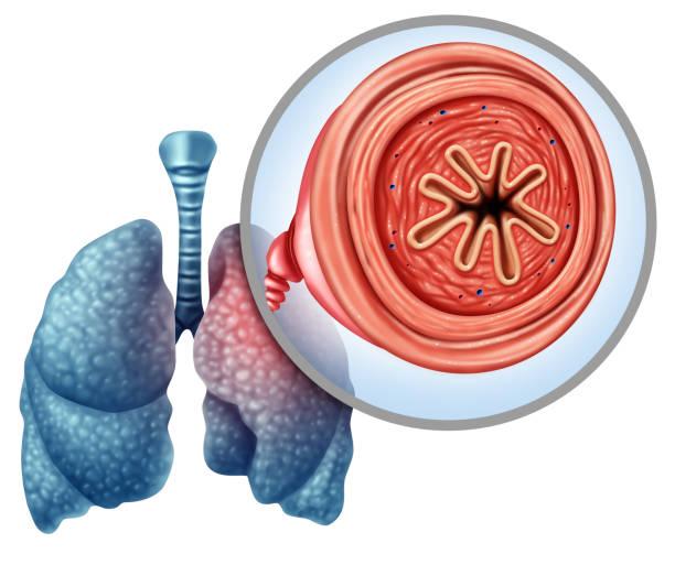 COPD stock photo