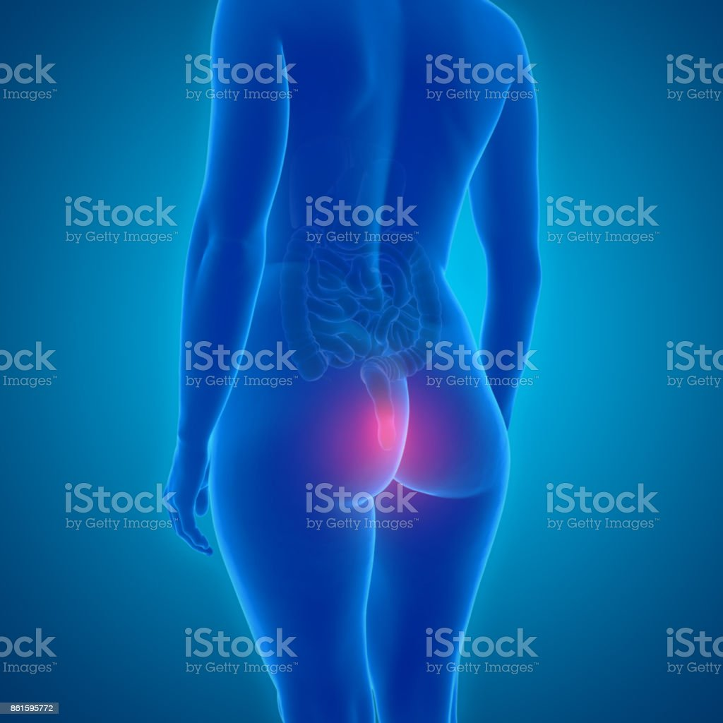 3d graphic showing female body with hemorrhoids stock photo