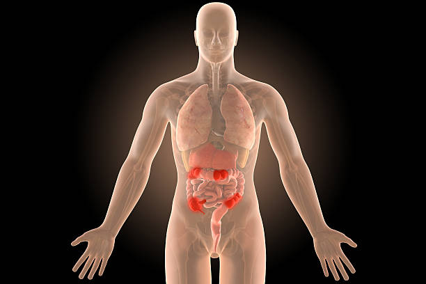 3d illustration human body crohn's ileocolic infection with clipping path. stock photo