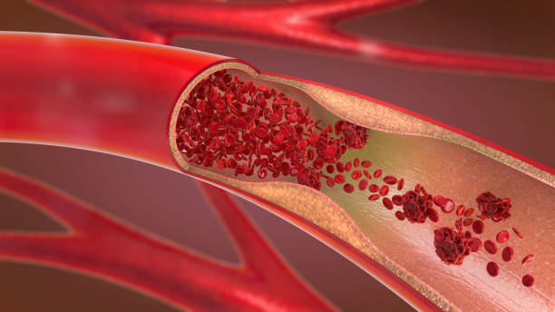 3d illustration of a constricted and narrowed artery and the blood cannot flow properly called arteriosclerosis stock photo