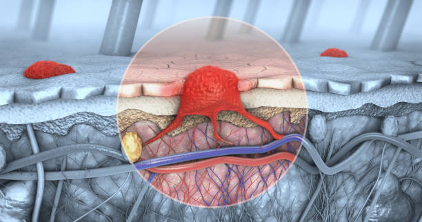 3d illustration of a cross-section of a diseased skin with melanoma that enters the bloodstream and lymphatic tract stock photo