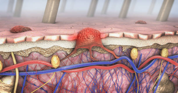 3d illustration of a cross-section of a diseased skin with melanoma that enters the bloodstream and lymphatic tract 3d illustration of a cross-section of a diseased skin with melanoma that enters the bloodstream and lymphatic tract carcinoma stock pictures, royalty-free photos & images