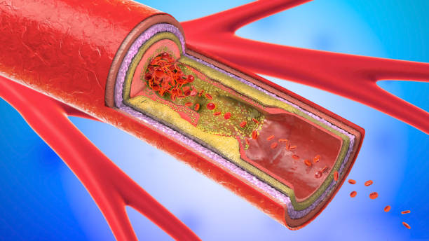 3d illustration of a precipitated and narrowing blood vessels or arteriosclerosis stock photo