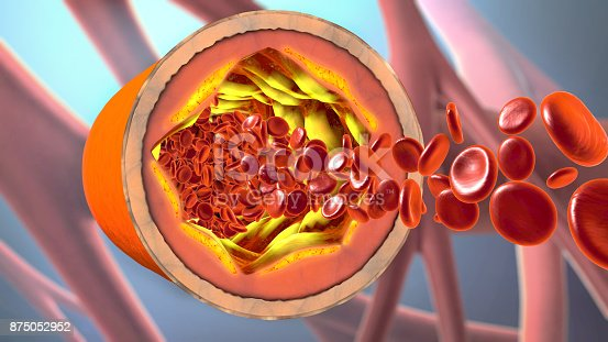 istock 3d illustration of a precipitated and narrowing blood vessels or arteriosclerosis 875052952