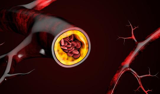 3d Illustration Of Blood Cells With Plaque Buildup Of Cholesterol - zdjęcia stockowe i więcej obrazów Anatomia człowieka