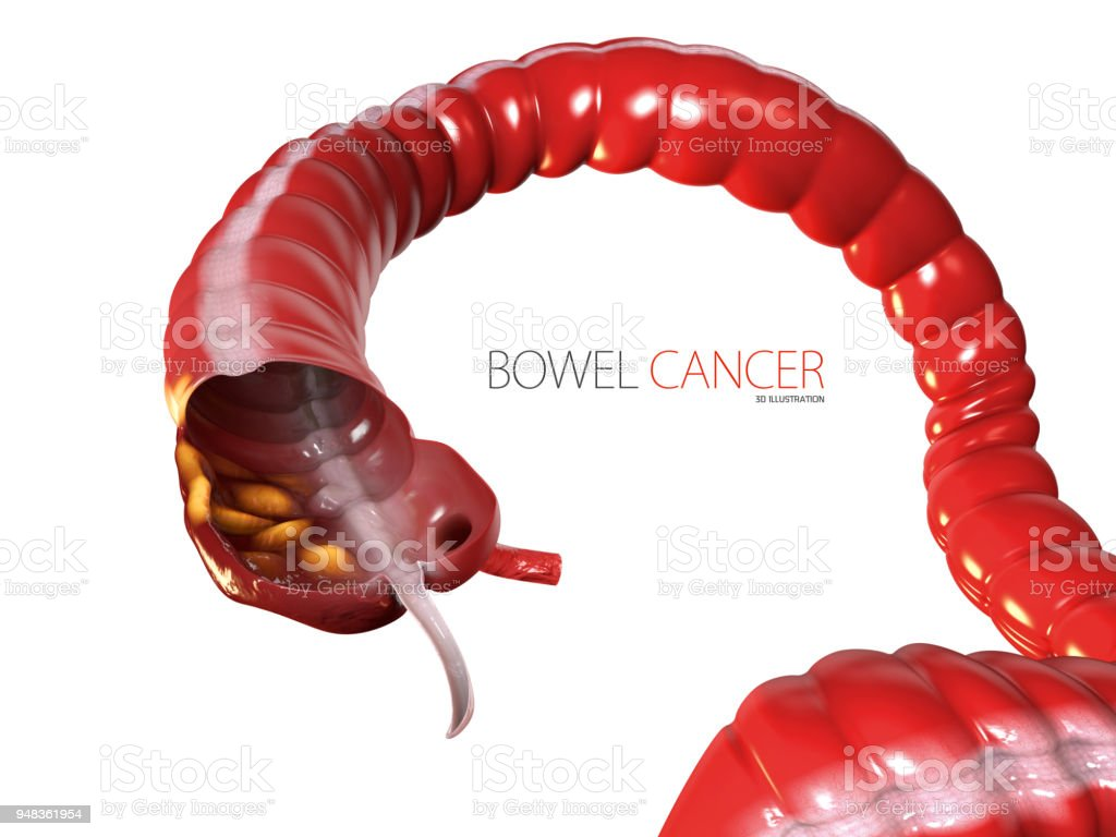 3d Illustration of Colorectal cancer, isolated white background stock photo