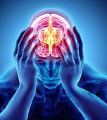istock 3d illustration of headache human. 881639332