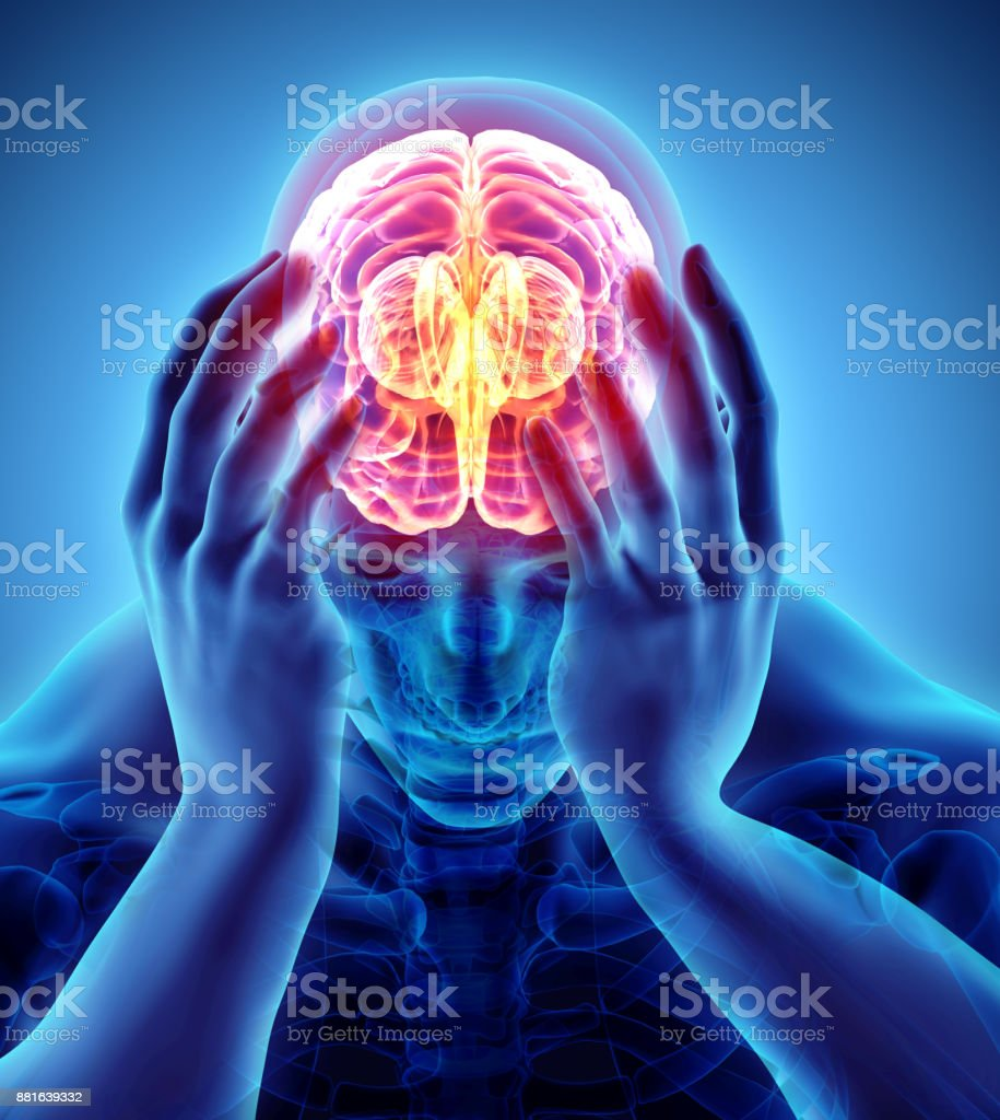 3d illustration of headache human. stock photo