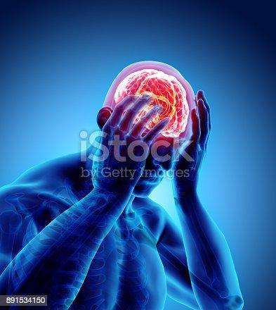 183306794 istock photo 3d illustration of headache human. 891534150