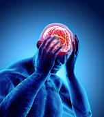 istock 3d illustration of headache human. 891534150