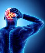 istock 3d illustration of headache human. 900775958