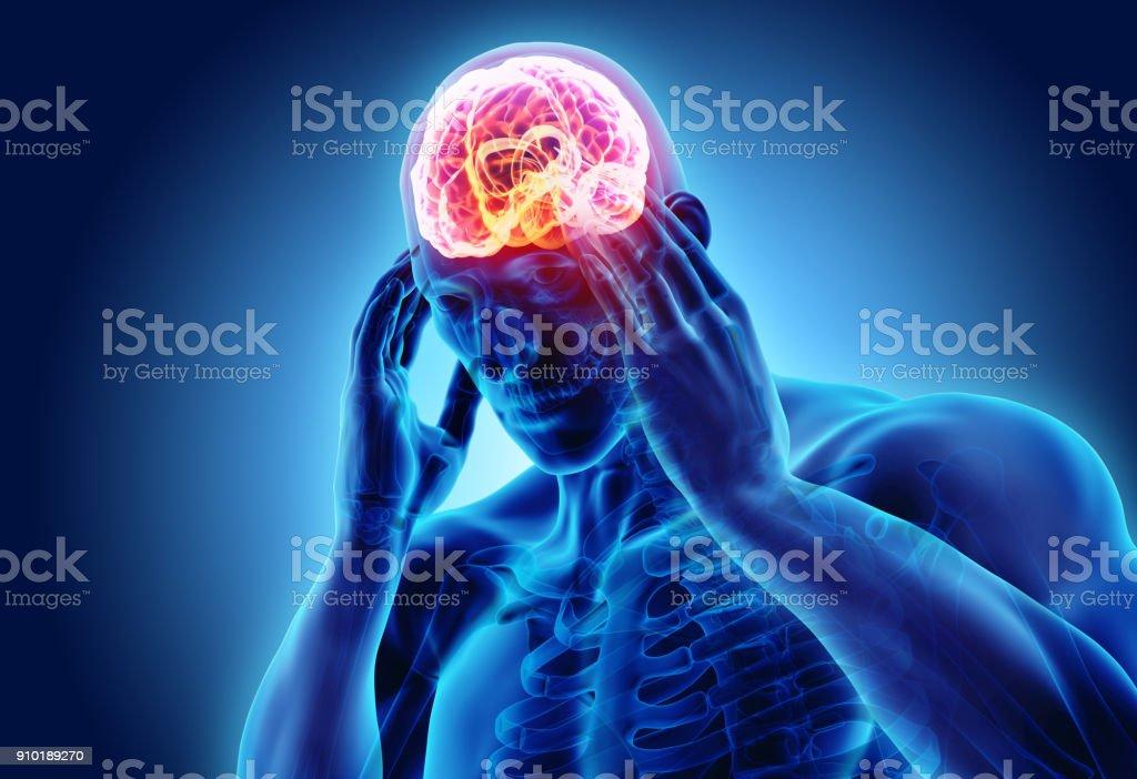 3d illustration of headache human. royalty-free stock photo
