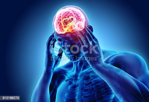 istock 3d illustration of headache human. 910189270