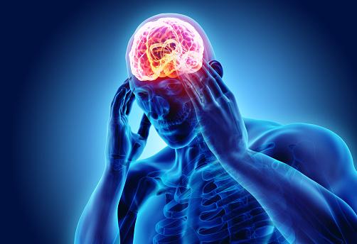 istock 3d illustration of headache human. 910189270