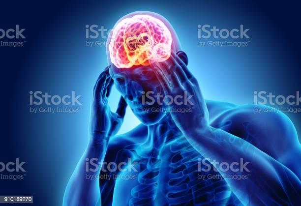 3d illustration of headache human picture id910189270?b=1&k=6&m=910189270&s=612x612&h=rzsxwoxsn jstvsuwsnzz8ys43khu9v57wcndqqmykg=