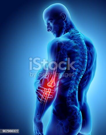 istock 3d illustration of human elbow injury. 902966322