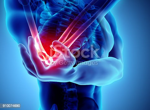 istock 3d illustration of human elbow injury. 910074690