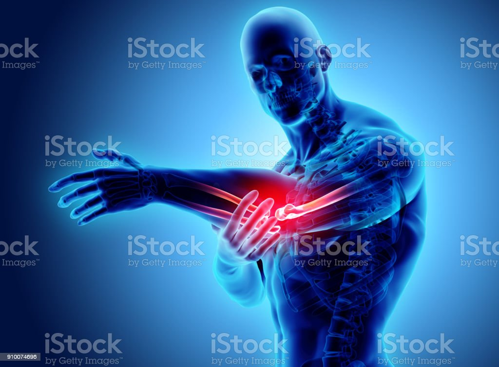 3d illustration of human elbow injury. stock photo
