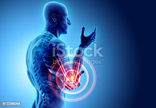 istock 3d illustration of human elbow injury. 912268048