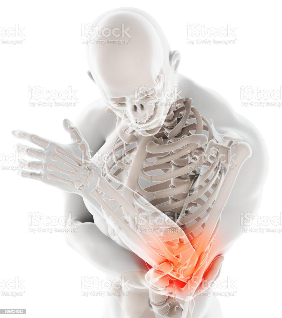 3d Abbildung Des Menschlichen Ellenbogenverletzung Stock-Fotografie ...