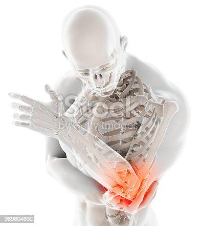 istock 3d illustration of human elbow injury. 969604692