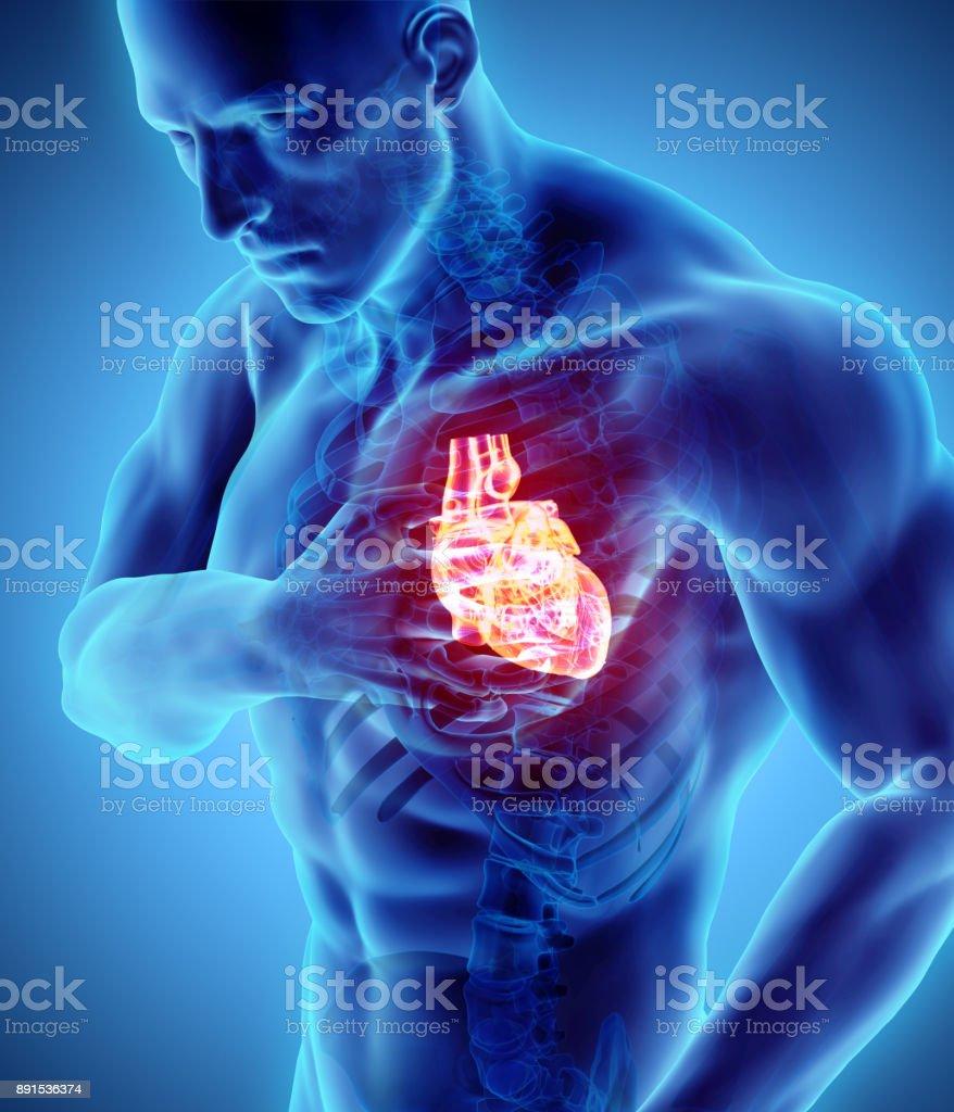 Ilustración 3D de ataque al corazón humano. - foto de stock
