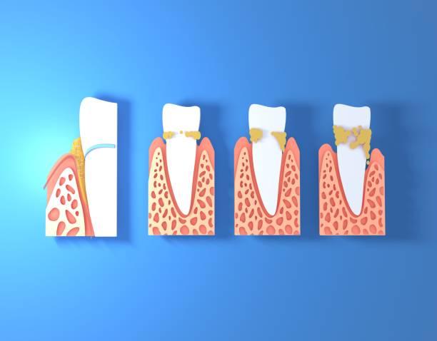 3d-illustratie van papier tanden met tartaar. - dentine stockfoto's en -beelden