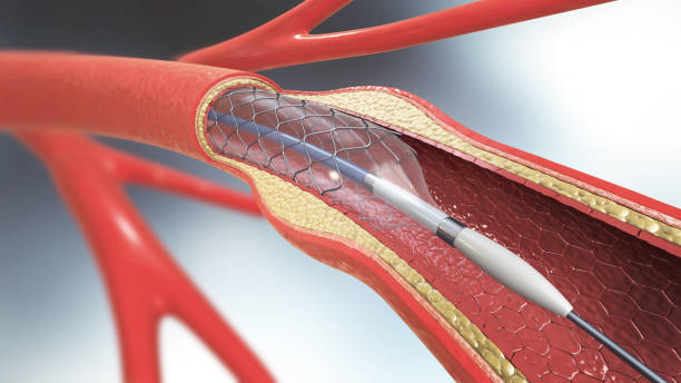 3d illustration of stent implantation for supporting blood circulation into blood vessels - catetere foto e immagini stock