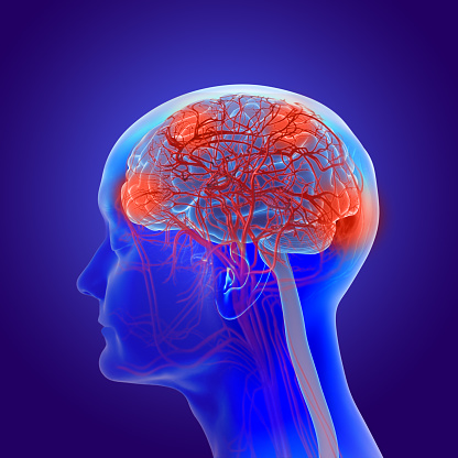 istock 3d illustration of the human brain with alzheimer's disease - dementia 1125868862