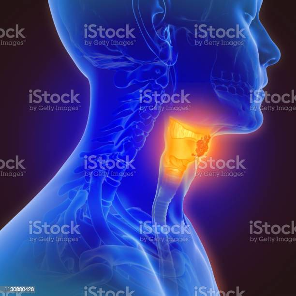 3d illustration of throat cancer picture id1130880428?b=1&k=6&m=1130880428&s=612x612&h=h9yswdjvmu0z rl6adjvdovqfpebvmwmr08tboeqne0=